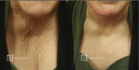 rejuvapen for neck before and after microneedling rejuvapen dermatology specialists of