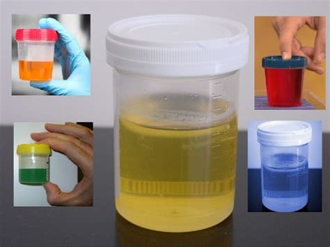 what color is your supposed to be what the urine color states about your health