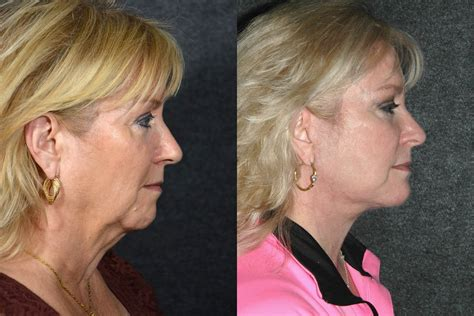 face lifts for women over 50 pictures of face lifts over 50 face lift before and