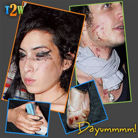Bloodied And Bruised Winehouse Stands By Husband Who Saved by Where U Come 4 Ur Gossip Just Another Weblog