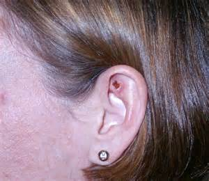 cancer types types of ear cancer
