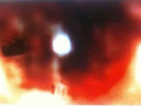 reflection in travis alexander's eye youtube