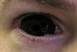black contact lenses including sclera!