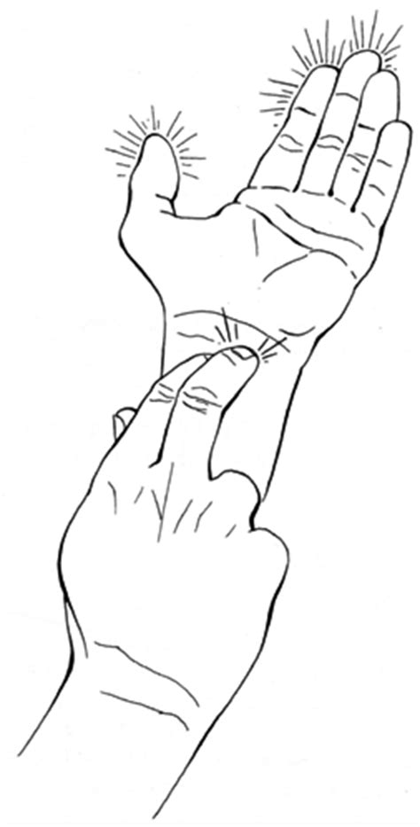 nbcot: hand and upper extremity disorders and injuries at
