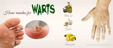 warts home treatment 34 home remedies for warts on other