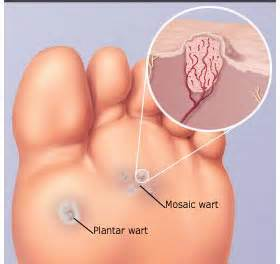 the about plantar warts pa foot and ankle associates