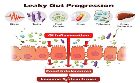 Leaky Gut Stool Test by What Is Intestinal Permeability Quot Leaky Gut Quot