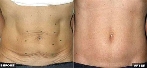 ways   rid  loose belly skin howhunter