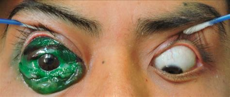 eyeball tattoo gone wrong eye tattoos cause complications marianas eye institute