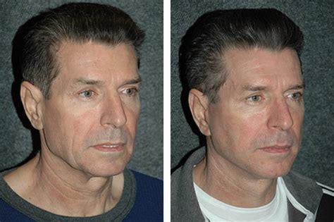 mini face lift new york facial plastic surgery male facelift new york ny