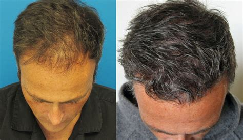 bio dr feller hair transplants new york new jersey most popular dr hasson high density 4778 grafts 1 sx ten months