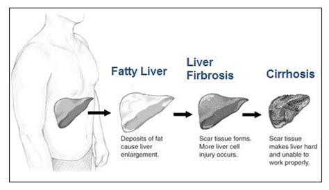 liver failure stages transplant surgery hemochromatosis