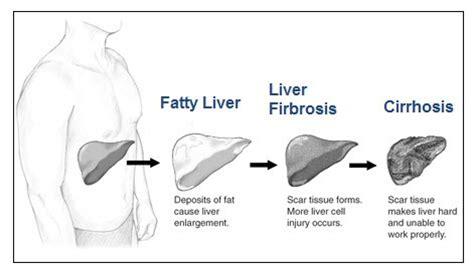 liver disease expectancy transplant surgery hemochromatosis