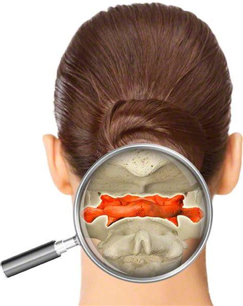 giri di testa vertebra atlante il disallineamento di questa vertebra