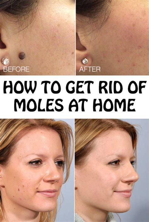 how to get rid of moles in my backyard 8 life changing beauty care tricks and hacks for gorgeous look