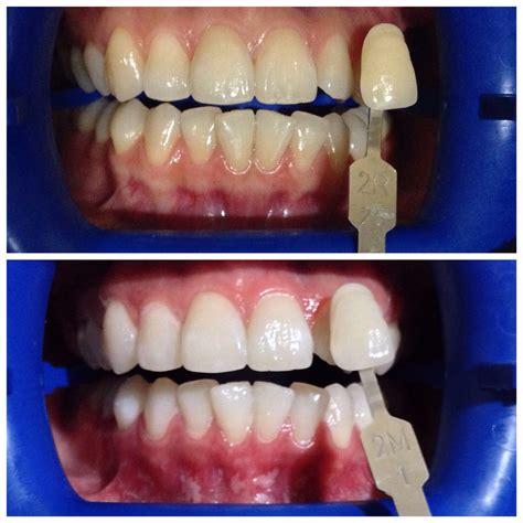 Pemutihan Gigi Bleaching hasil pemutihan gigi bleaching audy dental 3 audy dental