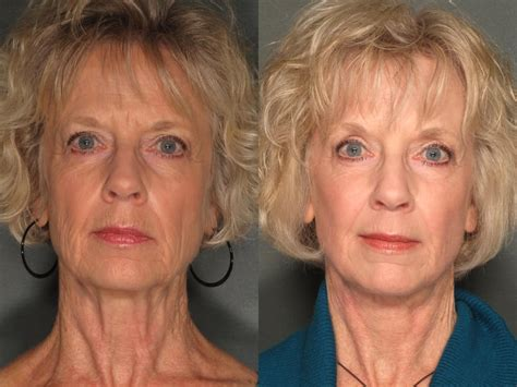 67 year old female face 67 year old female post facelift deep erbium laser and