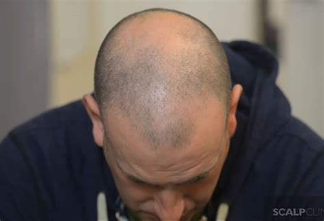 young male pattern baldness andy from manchester has smp to hide male pattern baldness