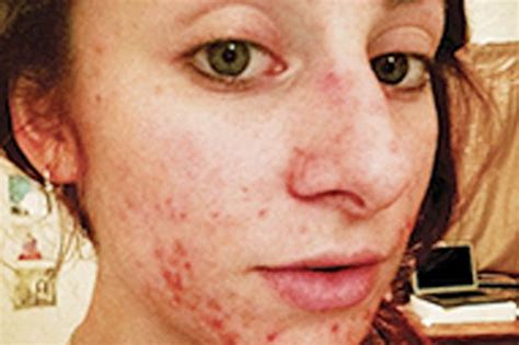 actress with acne severe acne won t stop actress achieving her dream now