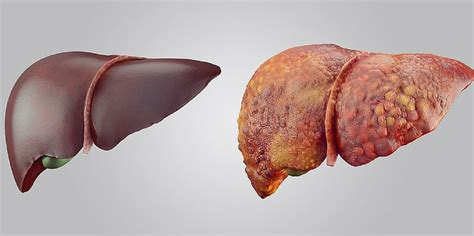 Liver Detox Or Unhealthy Liver by 8 Signs Of An Unhealthy Liver To For Yuri Elkaim
