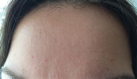 skin colored bumps on small flesh colored bumps on forehead and hairline