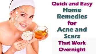home remedies for spots on due to pimples easy home remedies for acne and scars that work