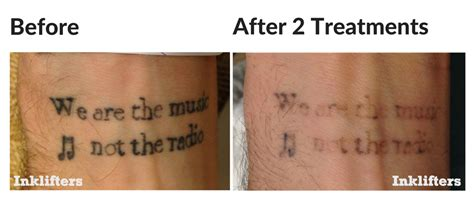 colour tattoo removal before and after laser removal inklifters