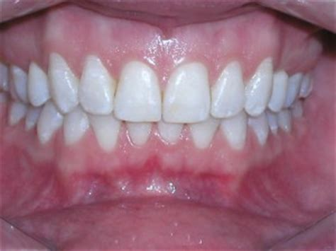 what color are gums healthy images