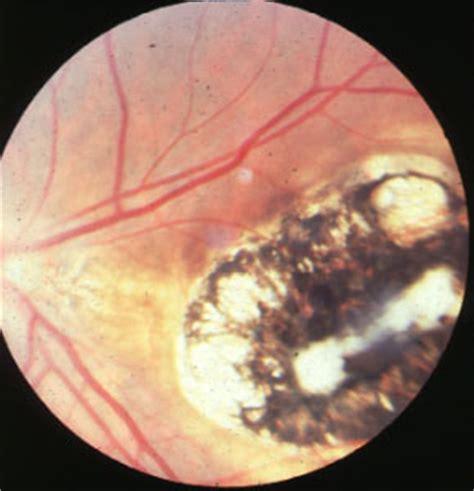 congenital toxoplasmosis. causes, symptoms, treatment