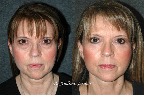 mini face lift new york facial plastic surgery eye lift lateral endoscopic brow lift and mini face lift