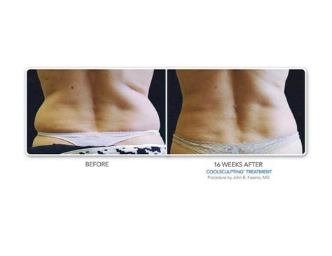 coolsculpting before and after gallery bodylase 174 med spa