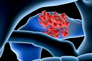 Proton Therapy Pancreatic Cancer by Pancreatic Cancer Provision Cares Proton Therapy