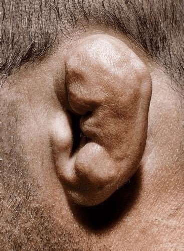 cauliflower ear cauliflower ear causes pictures draining and treatment