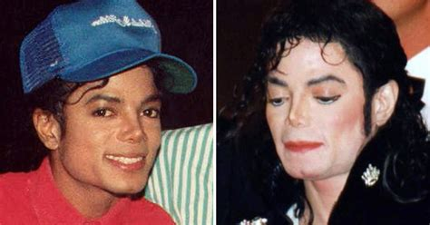 why did michael jackson change his skin color why michael jackson s skin turned white the years