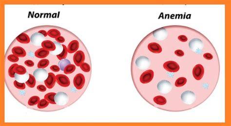 relación entre celiaquía y anemia | celicity