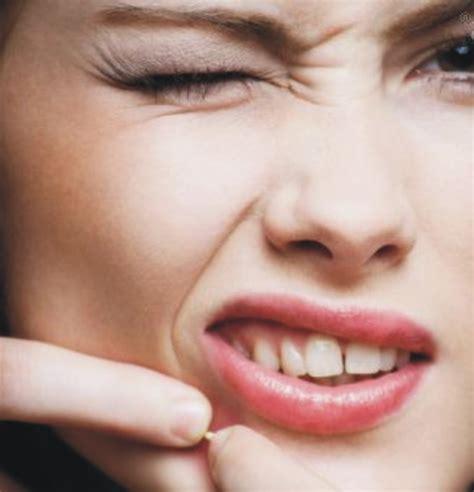 menghilangkan mengatasi jerawat  wajah obachti