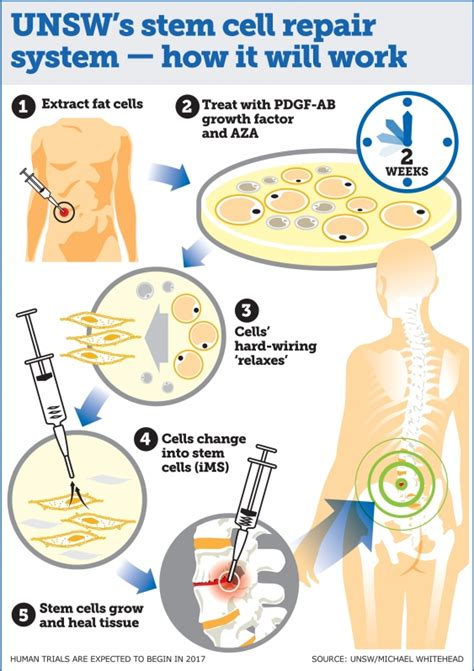 parts therapy a stem cell repair system that can regenerate any of