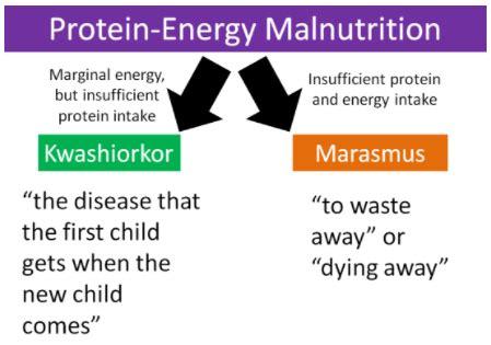 protein energy malnutrition 2 28 protein energy malnutrition medicine libretexts