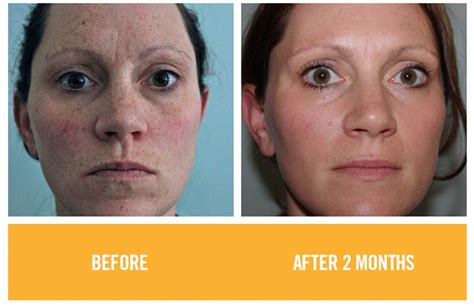 rodan  fields review    products  work