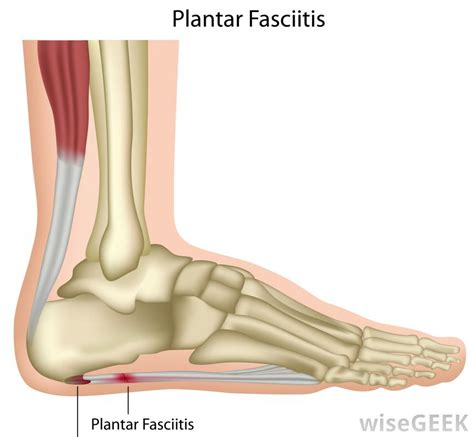 Planter Fasci by What Is A Plantar Fasciitis Splint With Pictures