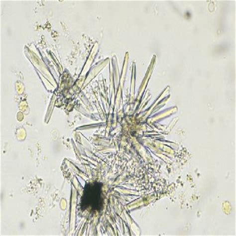 crystals in urine calcium phosphate crystals in urine laboratories