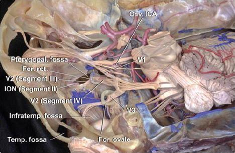 infraorbital nerve  surgically relevant landmark   pterygopalatine fossa cavernous