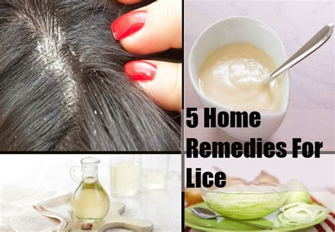 home lice treatment ideaforgestudios