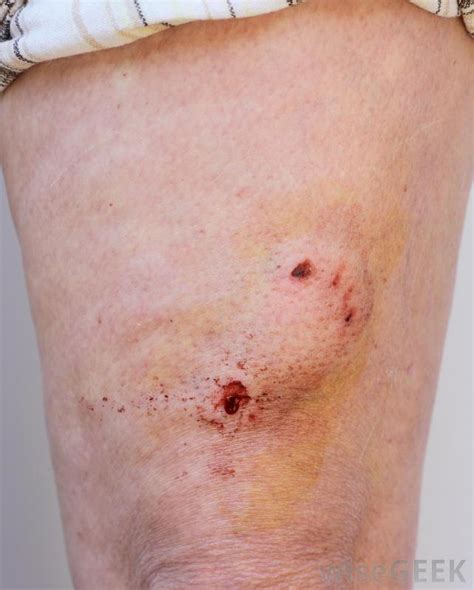 best antibiotics for cellulitis what are the treatments for cellulitis with pictures