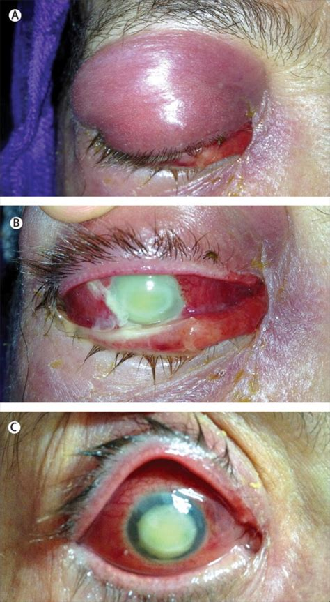 couching eye acute fulminant endophthalmitis complicating traditional