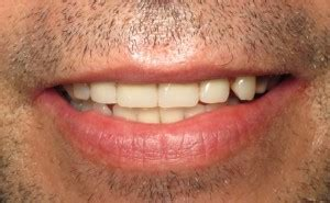 Comfort Dental Southfield by Partial Dentures