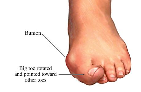 Tender Knot Blouse how to get rid of bunions naturally at home