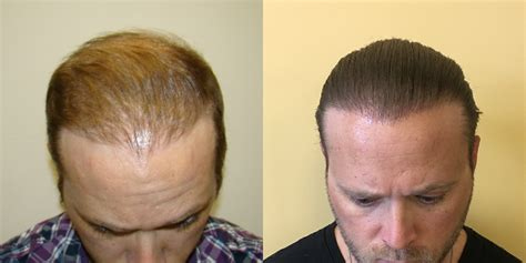 hair plugs for men hair transplant restoration hair loss blog fort
