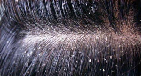 Air Drying Hair Causes Dandruff scalp treatments itchy flaky scalp treatments hairology co uk the root to
