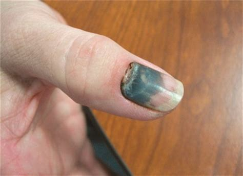 nail bed injury 15 interesting facts about nails you never knew trends and health